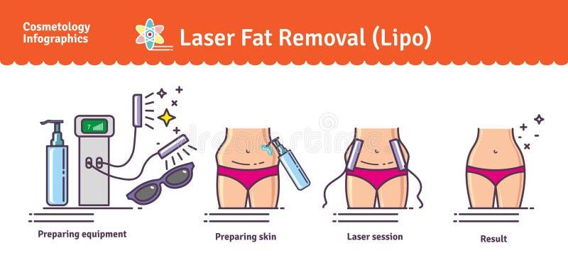 Sistema ilustrado vector con retiro de la grasa del laser LIPO stock de ilustración