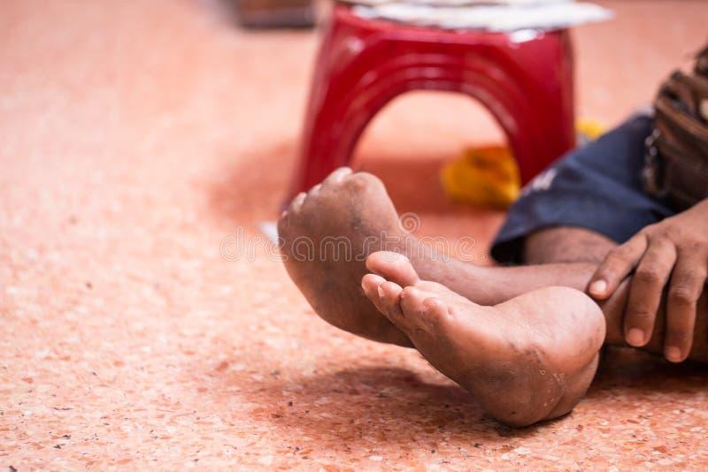 Sitter det lamslog benet för den unga mannen från födelse på golvet för att tigga royaltyfri foto