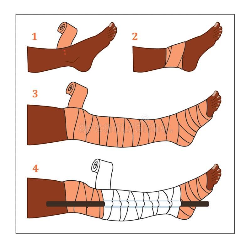 Situação comum dos primeiros socorros - mordida da serpente ilustração do vetor