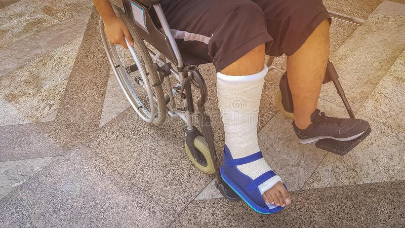 Sitzender Rollstuhl des defekten Gipsbeinform Jugendlich-Jungen Verletzungsbein stockfoto