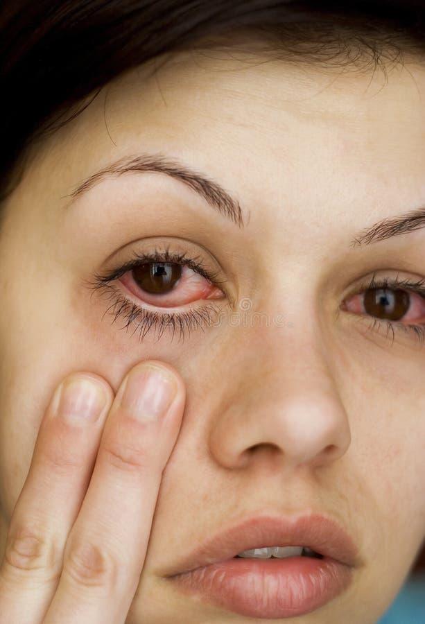 Sjuka kvinnas ögon arkivfoton