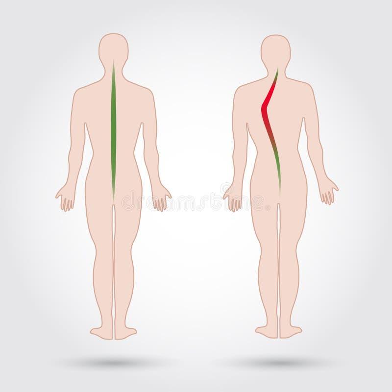 Sjukdom av en rygg scoliosis Kroppställingsdefekt Isolerade mänskliga konturer också vektor för coreldrawillustration royaltyfri illustrationer