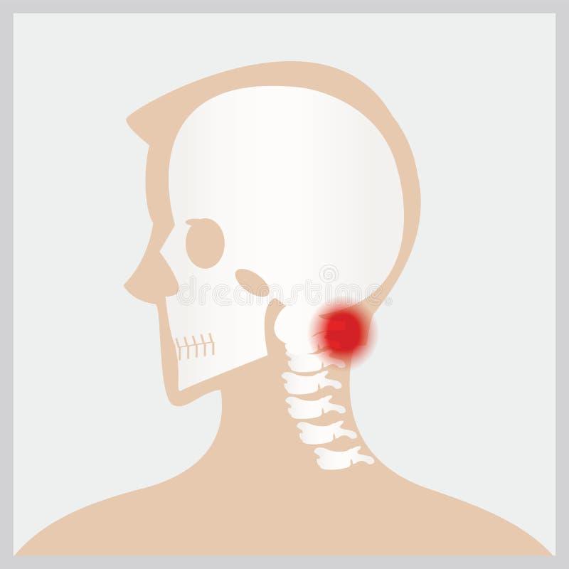 Sjukdom av huvudet och halsen vektor illustrationer