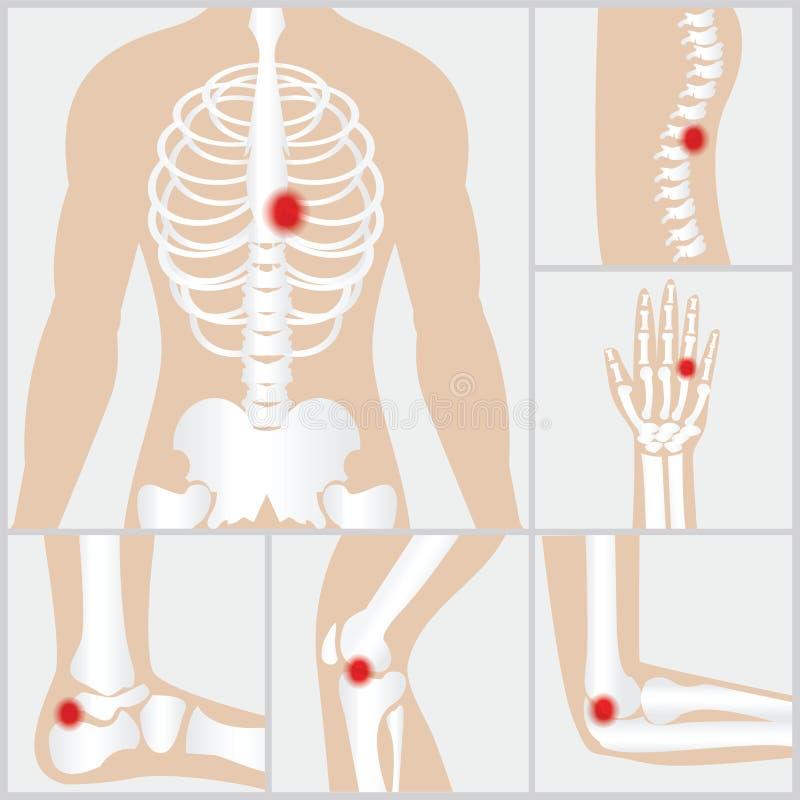 Sjukdom av skarvarna och benen royaltyfri illustrationer