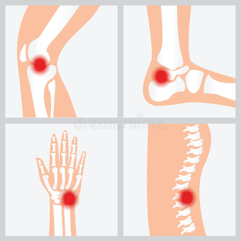 Sjukdom av skarvarna och benen vektor illustrationer