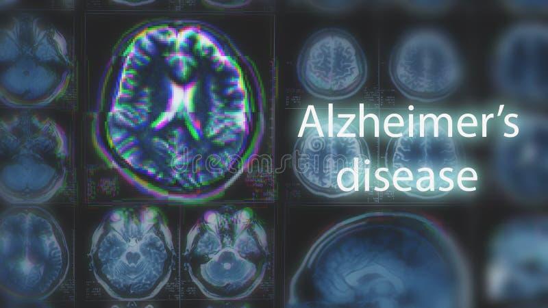 Sjukdom för Alzheimer ` s eller Parkinson begrepp Suddig MRI-bildläsning av hjärnan med tekniskt feleffekt royaltyfri foto