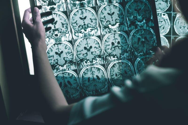 Sjukdom för Alzheimer ` s på MRI royaltyfri bild