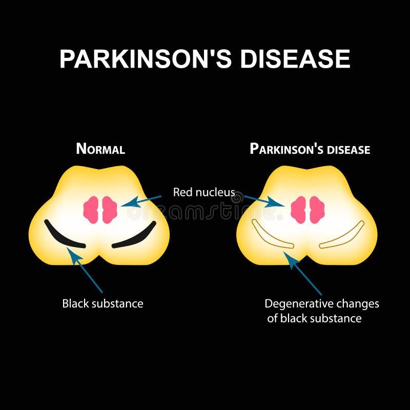 Sjukdom för Parkinson ` s Degenerative ändringar i hjärnan är en svart vikt Vektorillustration på svart bakgrund royaltyfri illustrationer
