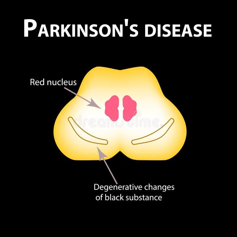 Sjukdom för Parkinson ` s Degenerative ändringar i hjärnan är en svart vikt Vektorillustration på svart bakgrund stock illustrationer