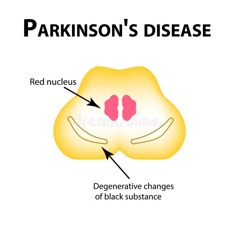 Sjukdom för Parkinson ` s Degenerative ändringar i hjärnan är en svart vikt Vektorillustration på isolerad bakgrund stock illustrationer