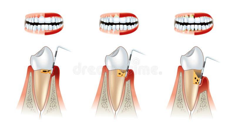 Sjukdomar av den tand- intrigen för tänder. Alveolysis royaltyfri illustrationer