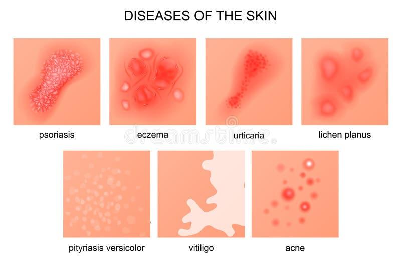 Sjukdomar av huden stock illustrationer