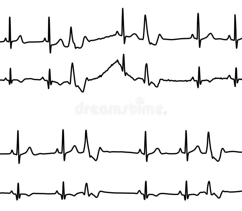 sjukdomgrafhjärta vektor illustrationer