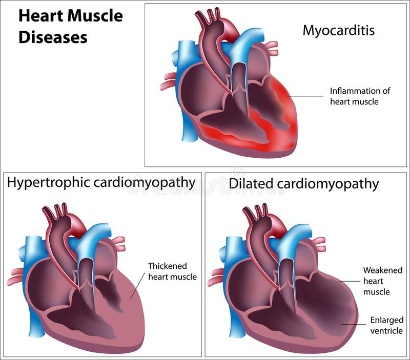 sjukdomhjärtamuskel vektor illustrationer