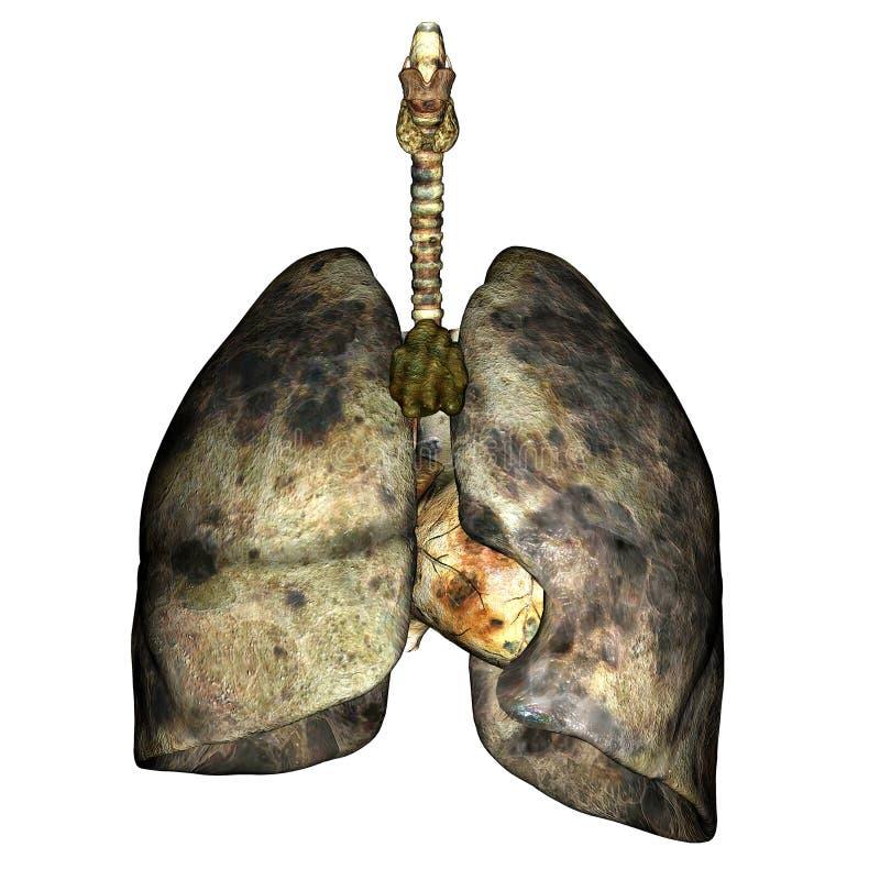 sjukdomlung stock illustrationer