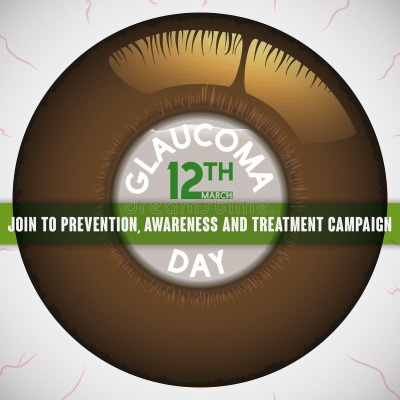 Sjukt öga med den vattusiktiga hornhinnan som främjar den förebyggande aktionen mot glaukom, vektorillustration royaltyfri illustrationer