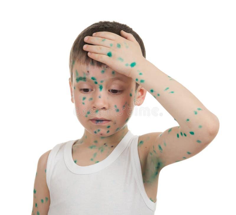 Sjukt barn. chickenpox royaltyfri fotografi