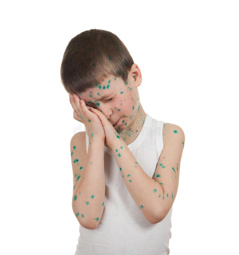 Sjukt barn. chickenpox royaltyfri foto
