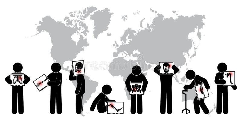 Skärm för bildskärm för pinnemanhåll: visa skelettet, världskartan (det världsomspännande sjukvårdbegreppet) (den lung- tuberkulo stock illustrationer