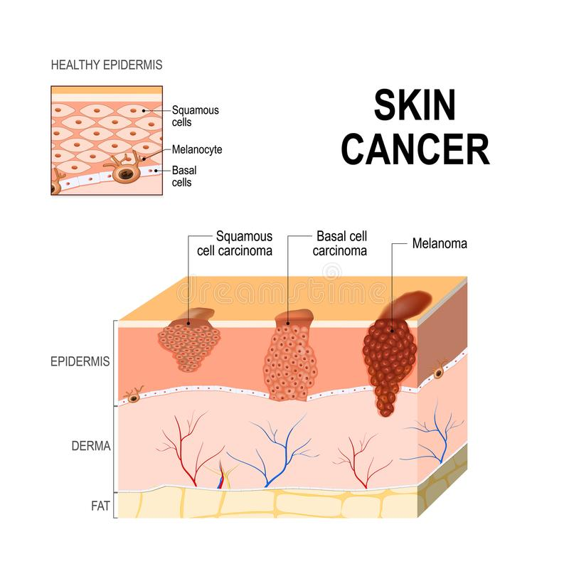 Skóra nowotwór Łuskoskórej komórki carcinoma, komórka nowotwór i Mela, royalty ilustracja