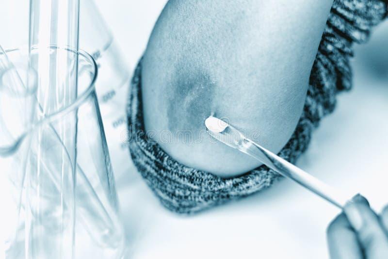 Skóry alergii chorob problem, zakończenie w górę doktorskiego robi traktowania na atopic dermatitis wysypce fotografia stock