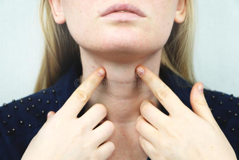 Sköldkörtel Closeupstående av den gulliga sjuka unga blonda kvinnan i den vita överkanten som har den öm halsen som rymmer handen royaltyfria bilder
