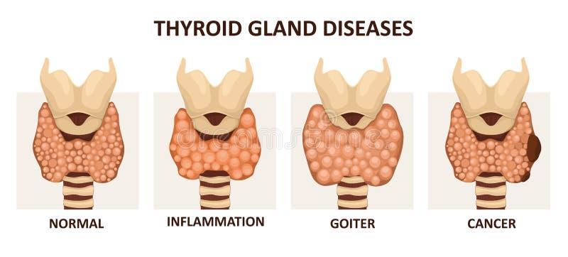 Sköldkörtelsjukdomar stock illustrationer