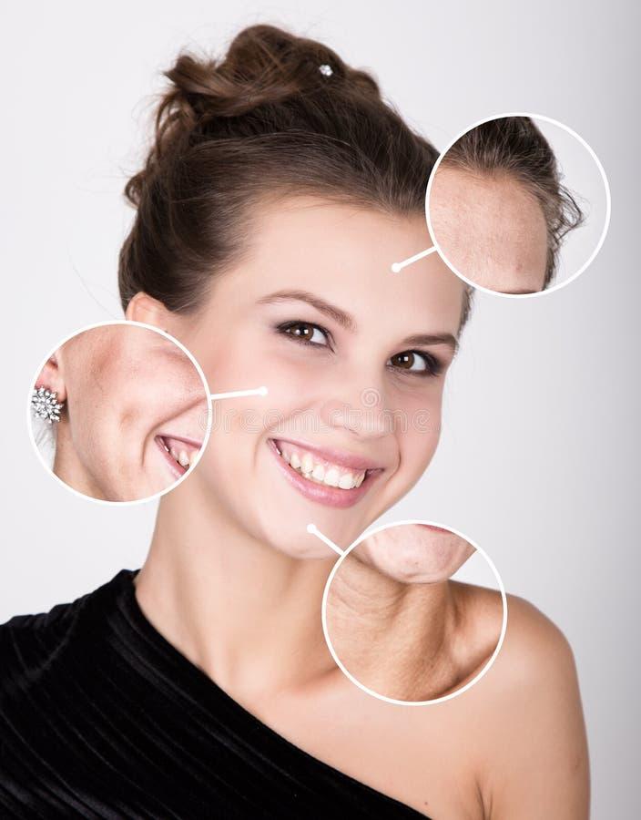 SkönhetSpa kvinna med perfekt ny hud Begrepp för ungdomhudomsorg Hud före och efter som skalar Ansikts- behandling royaltyfria bilder