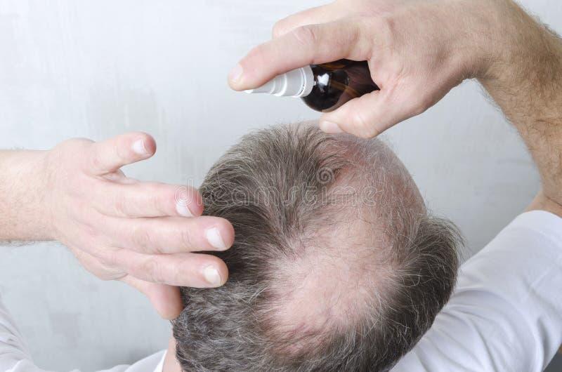 Skönhettillvägagångssätt för hårtillväxt Mannen har ett problem med hårförlust royaltyfri foto