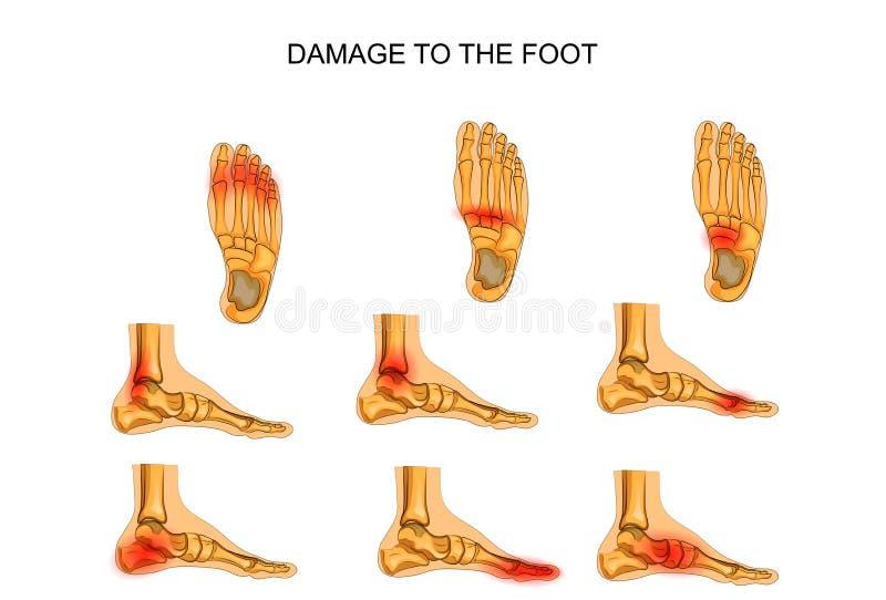 Skada till foten stock illustrationer