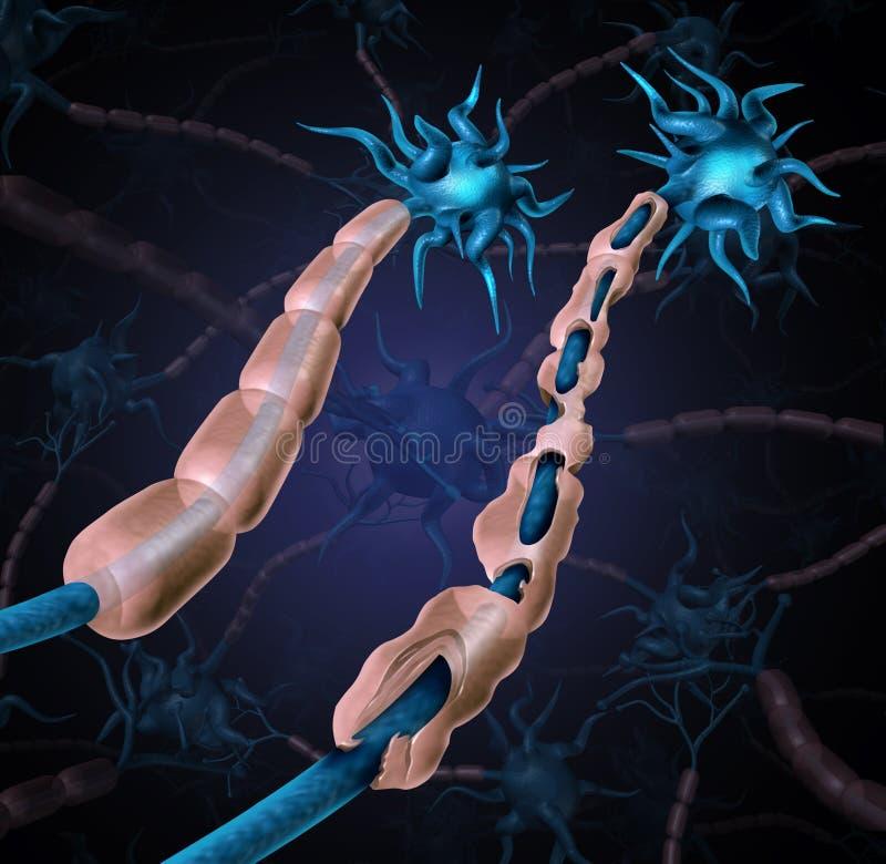 Skadad Myelin för multipel sklero vektor illustrationer