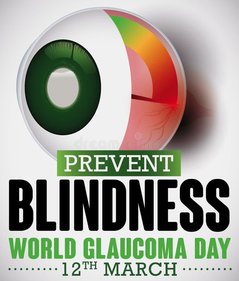 Skadat förfallet högt Intraocular tryck för optisk nerv som firar minnet av glaukomdag, vektorillustration royaltyfri illustrationer
