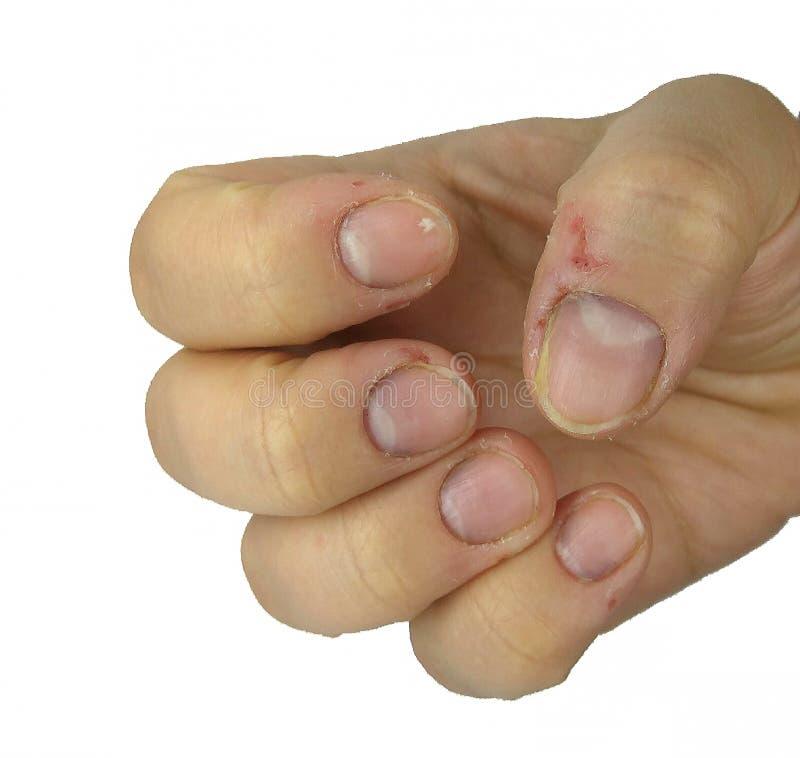 Skadlig nervöst spikar och att bita spikar på fingrar royaltyfria foton