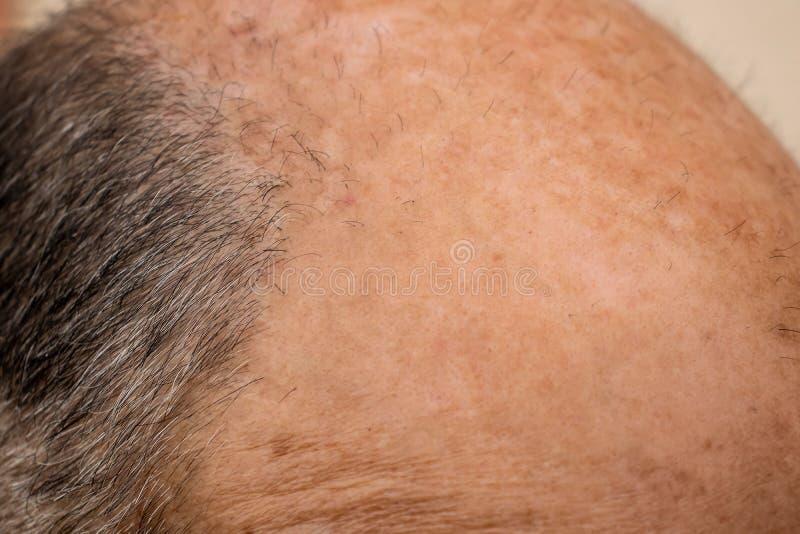 Skallig panna av en man med hårförlust royaltyfria bilder
