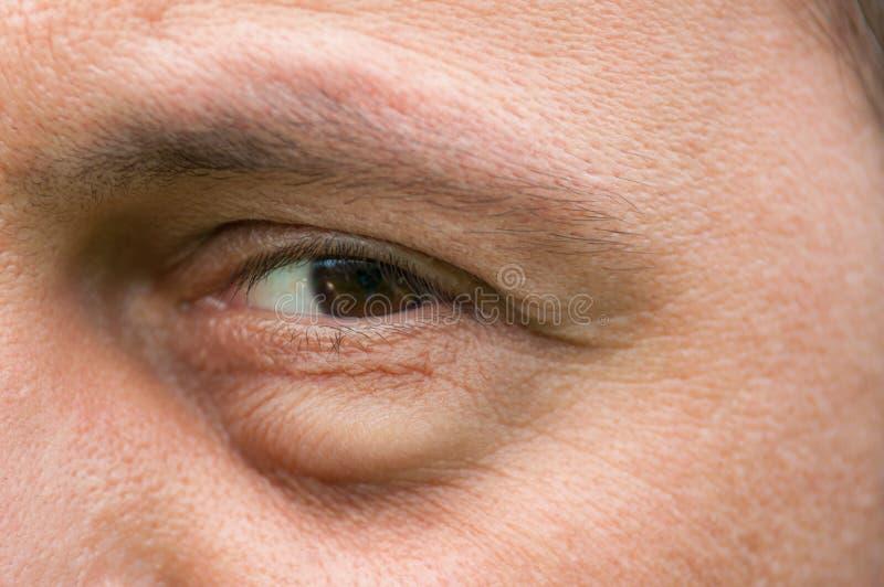 Skamfläck, inflammation eller påsebulnad under öga arkivbild