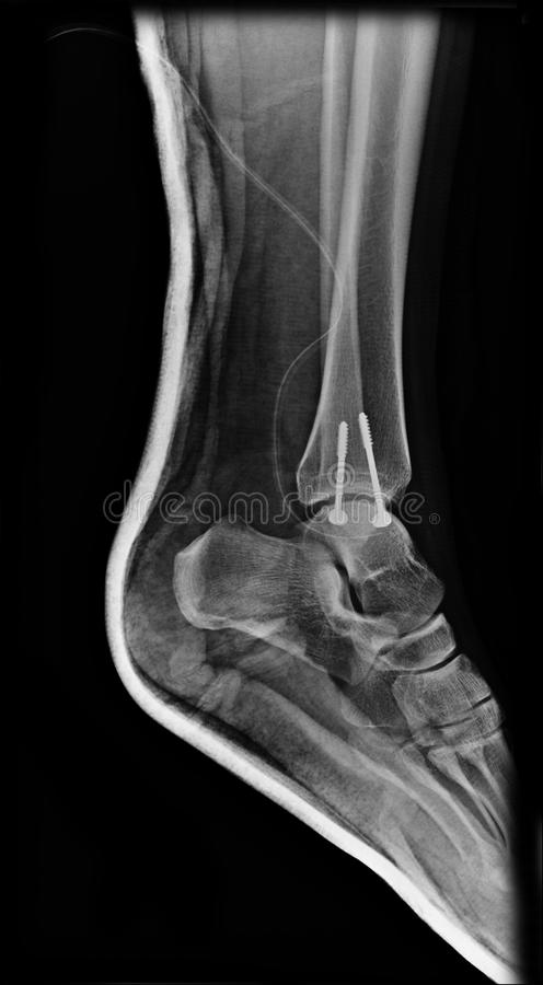 Skarv för fot för röntgenstrålebildankel royaltyfri fotografi