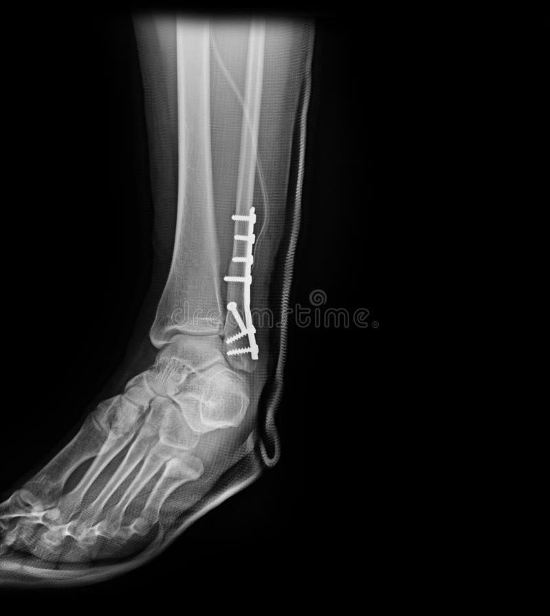 Skarv för fot för röntgenstrålebildankel arkivbild
