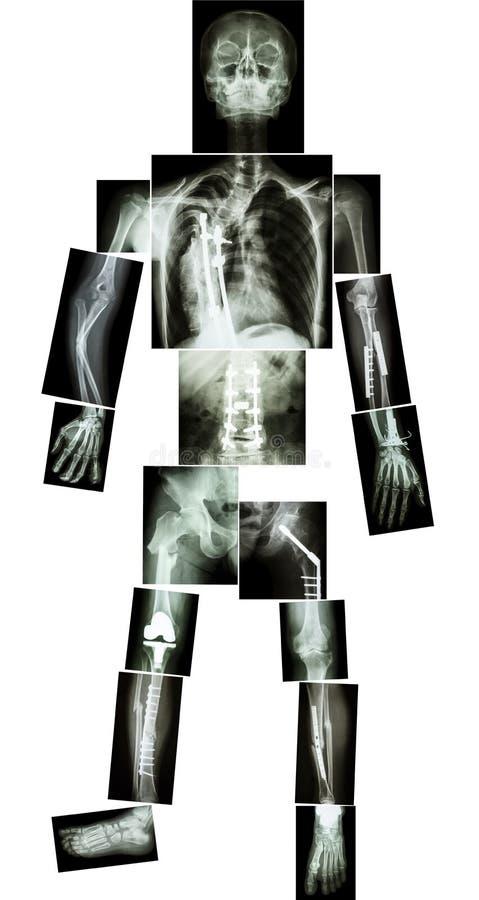 Skelet van mens royalty-vrije stock afbeelding