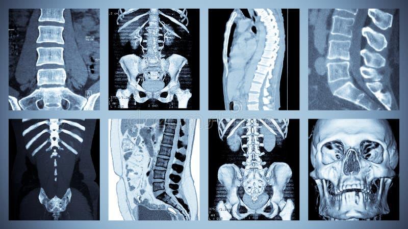 Skeletal Computer Tomography Scan. Collection of human skeleton Computer Tomography examination stock photos