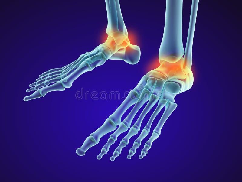 Skeletal foot - injuryd talus bone. Xray view. Medically accurate illustration. Skeletal foot - injuryd talus bone. Xray view. Medically accurate 3D illustration stock illustration