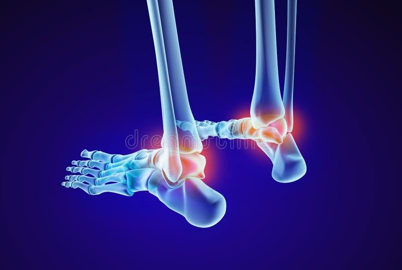 Skeletal foot - injuryd talus bone. Xray view. Medically accurate illustration. Skeletal foot - injuryd talus bone. Xray view. Medically accurate 3D illustration royalty free illustration
