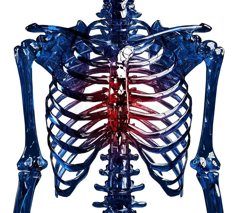 Skeleton Brust- Schmerz stockbilder