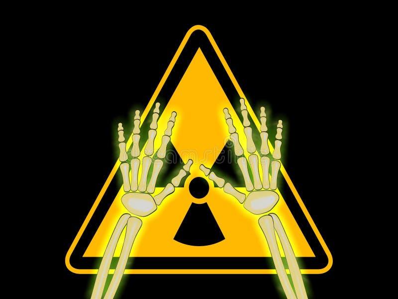 Skeleton Hände mit Symbol von Strahlungs-WARNING vektor abbildung