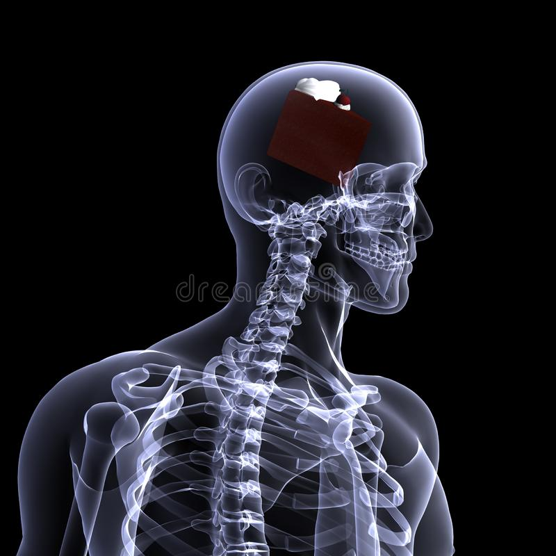 Skeleton Röntgenstrahl - Kuchen Stockfoto