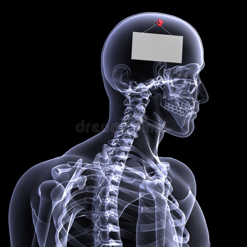 Skeleton X-Ray - Blank Sign stock illustration