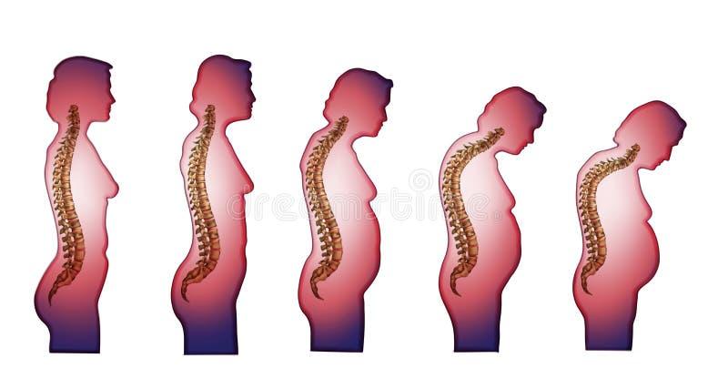 Skeleton_Spine som ändrar ryggen med ålder vektor illustrationer