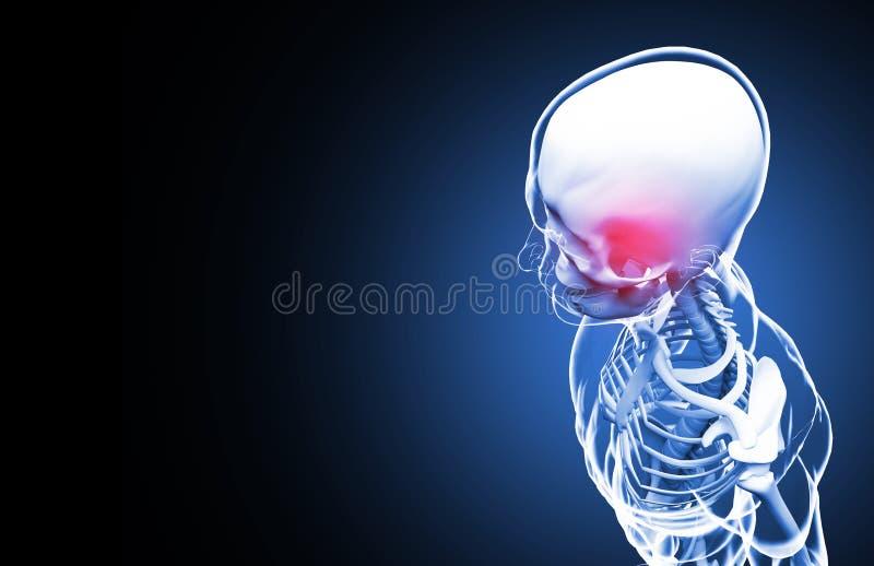 skelett Kopfschmerzen Abbildung 3D stock abbildung