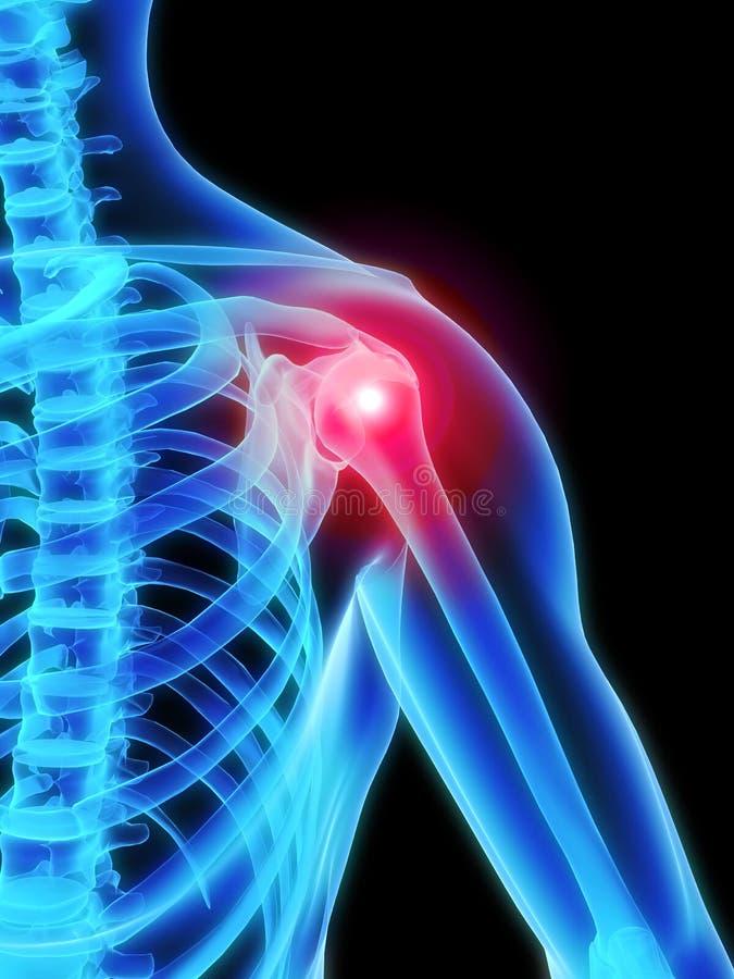 Skelettartige Schulter mit den Schmerz stock abbildung