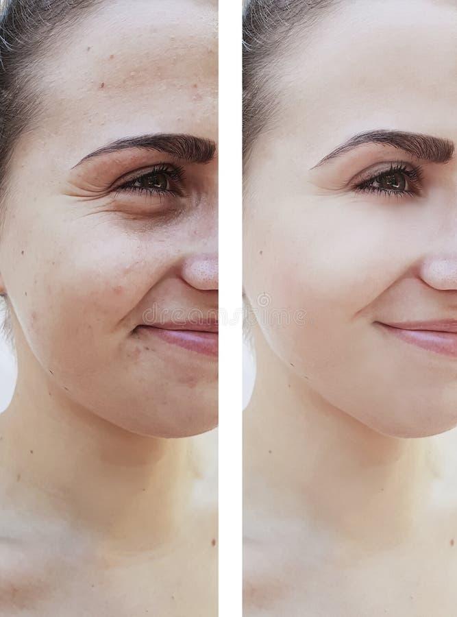 Skillnad för flickaskrynklor före och efter, korrigeringsbehandlingar arkivfoton