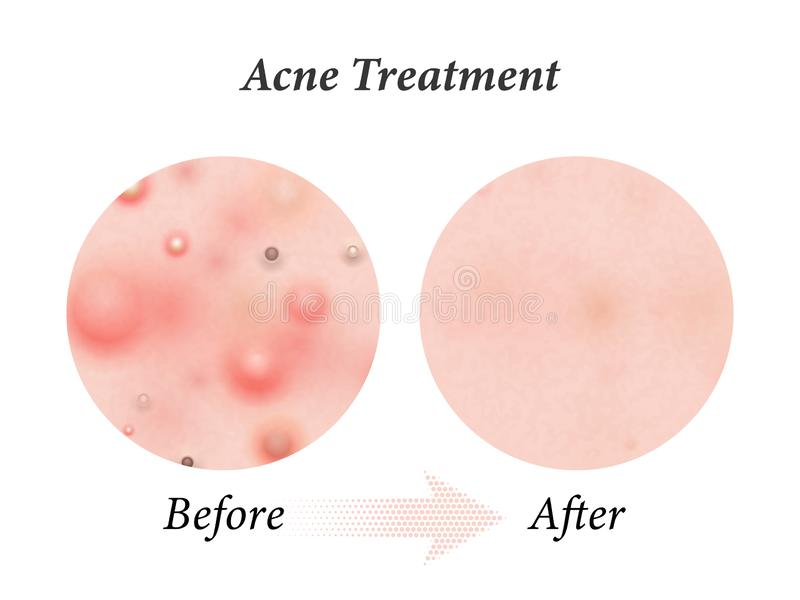 Skin acne treatment before and after. Vector skin acne pimples, facial cleanser and face cosmetic package vector illustration